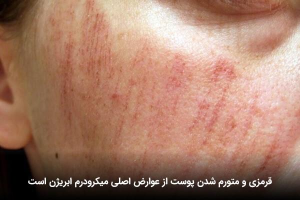 قرمز شدن پوست صورت پس از درمان با میکرودرم ابریژن