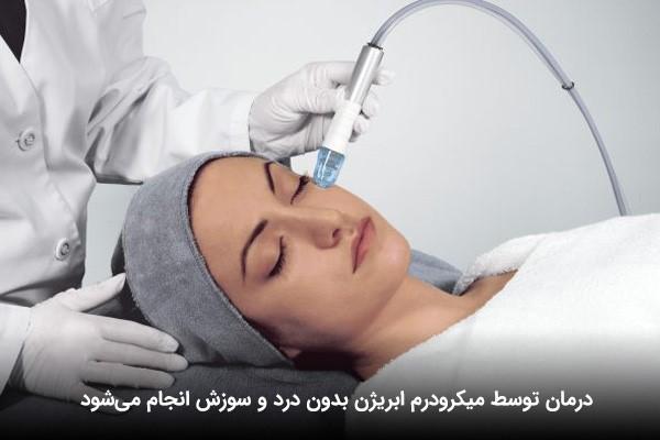 جوانسازی پوست یک خانم با میکرودرم ابریژن توسط پزشک