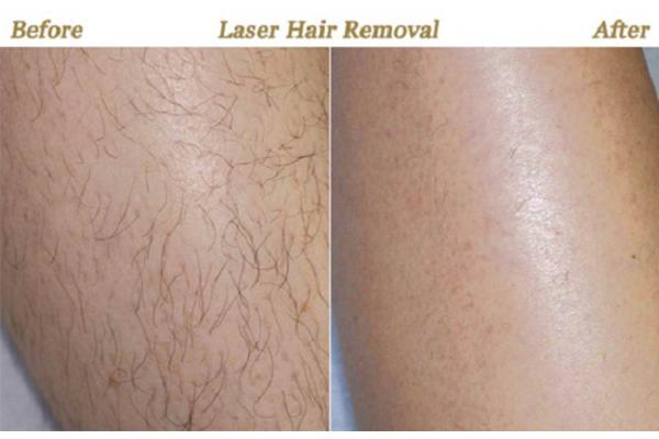 قبل و بعد از استفاده لیزر اکساندرایت برای درمان موهای زائد