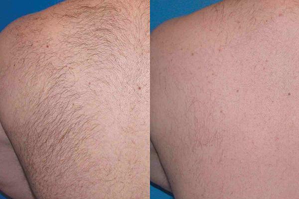 بررسی تاثیر شگفت انگیز لیزر اکساندار در درمان موهای زائد