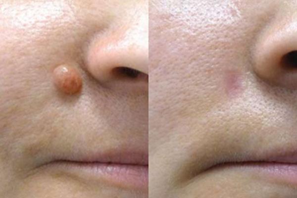 تاثیر استفاده از آر اف سرجیکال برای درمان خال صورت