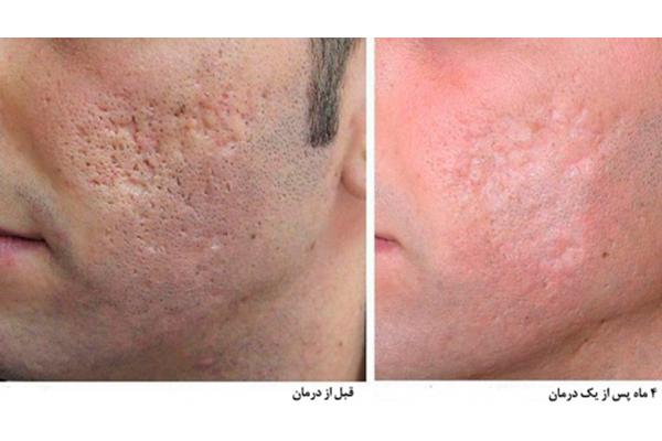 قبل و پس از درمان با لیزر Co2