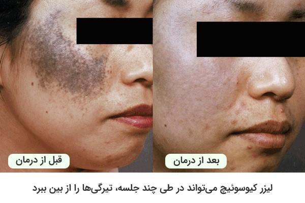 از بین بردن تیرگیهای پوست خانم توسط کیوسوئیچ