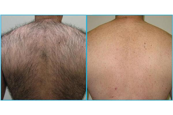 رفع موهای زائد پشت بدن با استفاده از فناوری اندیگ