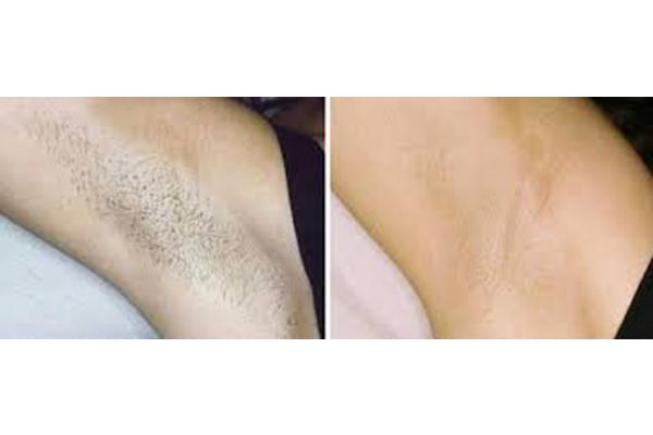 استفاده از لیزر دایود برای رفع همیشگی موهای زائد