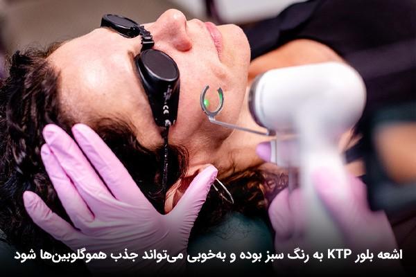 درمان توسط لیزر KTP برای رفع مشکل تکثیر رگهای خونی قرمز
