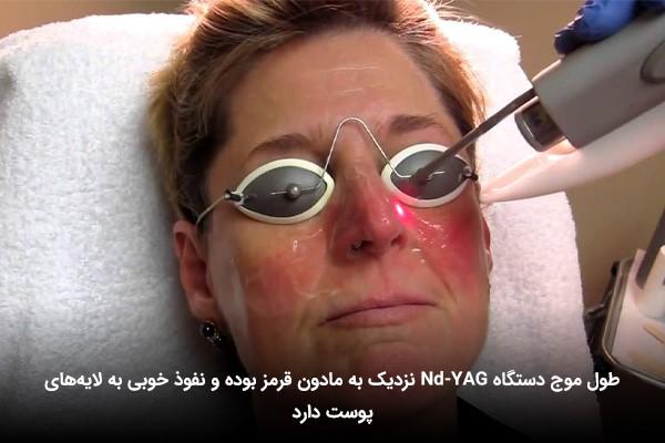 انجام لیزر اندیاگ توسط یک خانم میانسال با چشمانی بسته