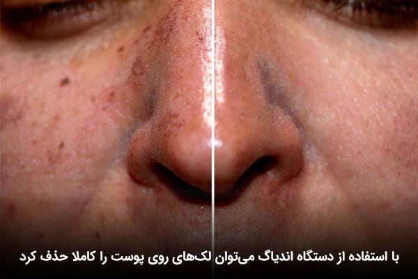 پاک شدن لکهای پوست با استفاده از دستگاه اندیاگ