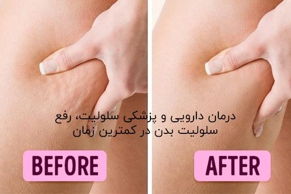 روش درمان سلولیت بدون تزریق