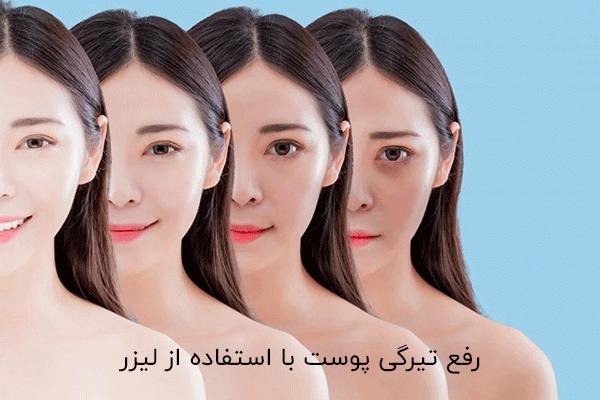 رفع تیرگی پوست با استفاده از لیزر