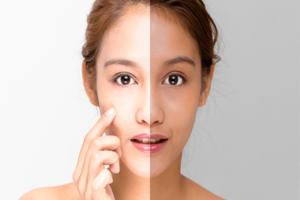 سفید شدن پوست صورت و بدن