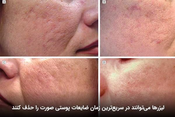 مراحل رفع مشکل ضایعات پوستی بر روی صورت
