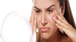 بهترین روش درمان منافذ باز پوست